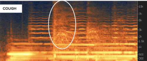 A cough shown on a spectrogram